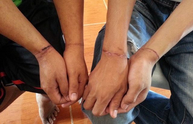 Probe military abuses of Zambo detainees including children, rights groups demand