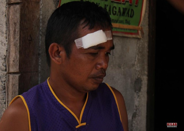 Boyong Unggla was grazed by a stray bullet in the head (Photo by Kilab Multimedia)