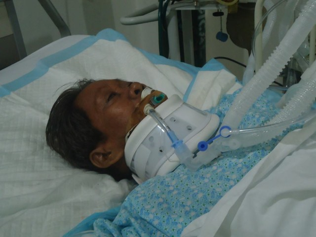 Teresita Navacilla was wounded by two bullets that grazed her head and nape. (Contributed photo/Bulatlat.com)