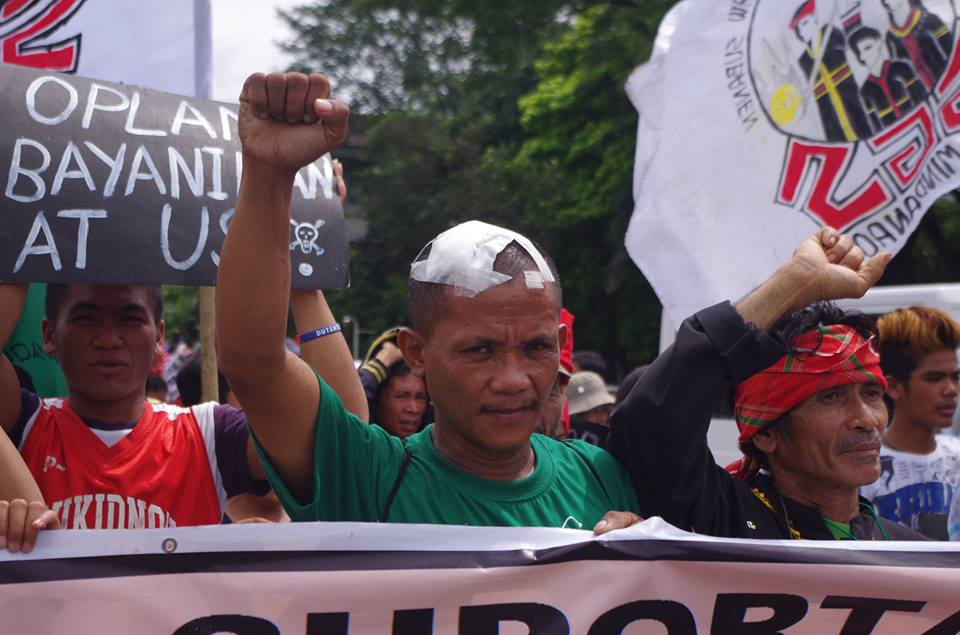 One of the injured protesters in the US embassy violent dispersal join the indignation rally in UP Diliman Oct. 20 (Photo by Fred Dabu/Bulatlat)