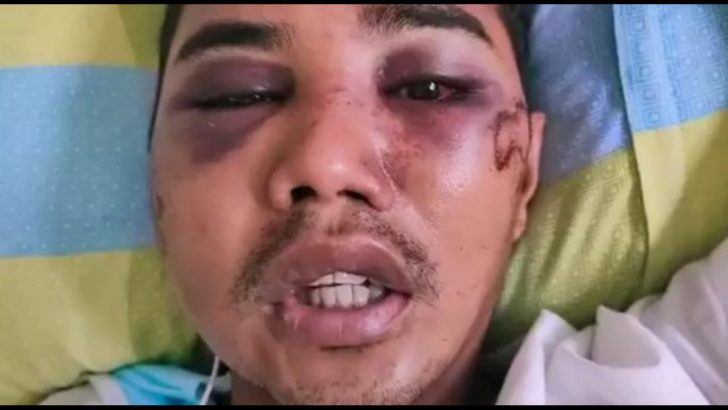 Factory worker in Cavite allegedly mauled by police over ECQ violations